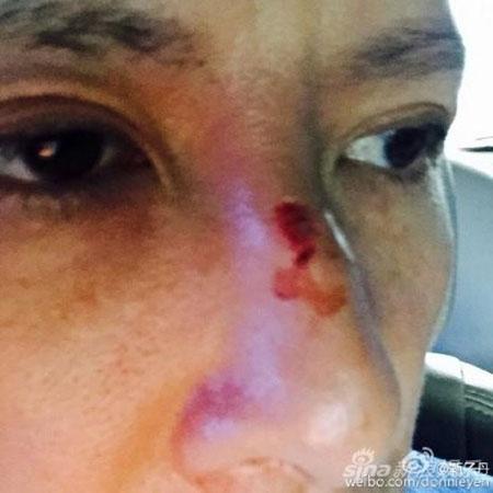Chân Tử Đan vỡ mũi, phủ nhận do Mike Tyson cắn