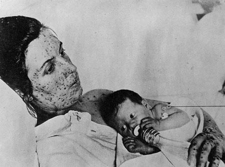 Những đại dịch kinh hoàng thế giới từng đối mặt - 8