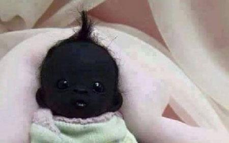Giật mình với hình ảnh em bé có làn da đen nhất thế giới
