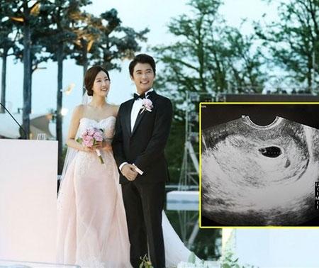 Ahn Jae Wook làm bố ở tuổi 44