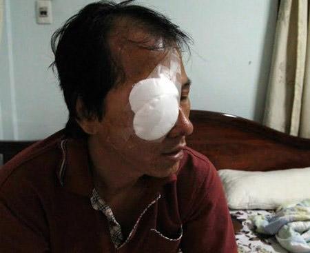 Tài xế bị ném đá trúng mắt kể lại đêm kinh hoàng