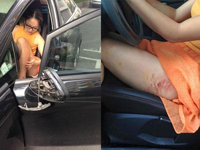 Diễn viên Lan Phương bị cướp kéo lê trên đường gần 2 mét