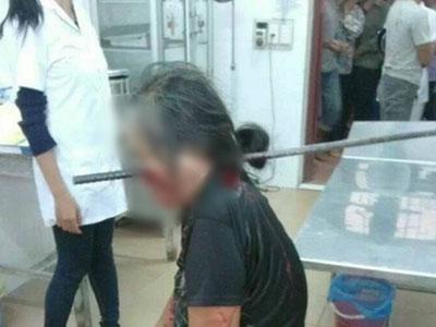 Phía sau bức ảnh cụ bà bị thanh sắt xuyên thủng đầu đang lan truyền trên mạng