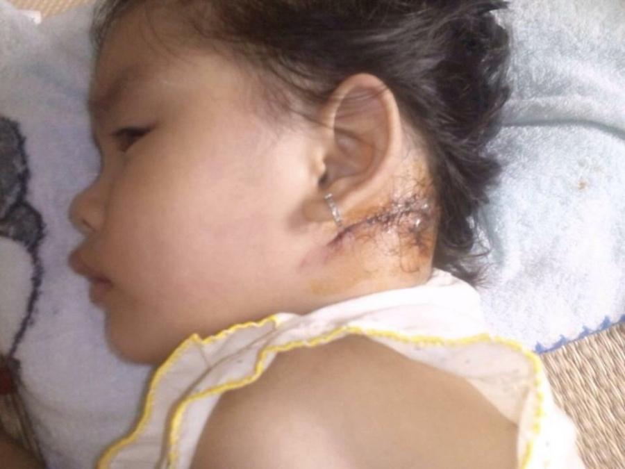 Bé Nguyễn Ngọc Thảo Vy với vết thương sau gáy