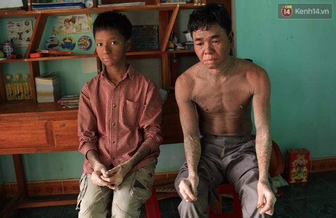 Cậu bé người rắn ở Quảng Nam: Hồi trước các bạn bỏ chạy vì sợ, nhưng giờ nhiều bạn thân với con lắm. - Ảnh 1.