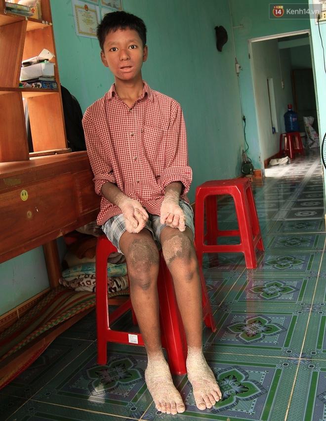 Cậu bé người rắn ở Quảng Nam: Hồi trước các bạn bỏ chạy vì sợ, nhưng giờ nhiều bạn thân với con lắm. - Ảnh 3.