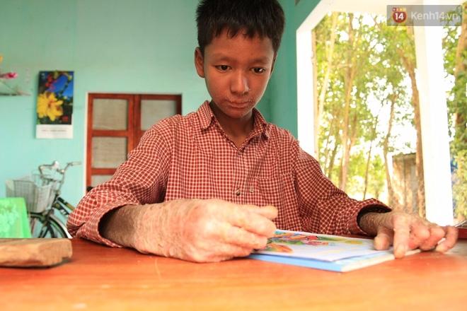 Cậu bé người rắn ở Quảng Nam: Hồi trước các bạn bỏ chạy vì sợ, nhưng giờ nhiều bạn thân với con lắm. - Ảnh 4.