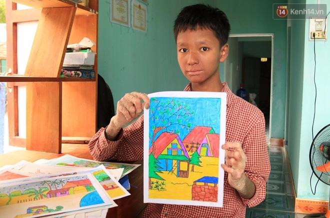 Cậu bé người rắn ở Quảng Nam: Hồi trước các bạn bỏ chạy vì sợ, nhưng giờ nhiều bạn thân với con lắm. - Ảnh 6.