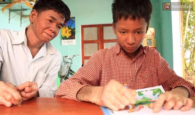 Cậu bé người rắn ở Quảng Nam: Hồi trước các bạn bỏ chạy vì sợ, nhưng giờ nhiều bạn thân với con lắm. - Ảnh 7.