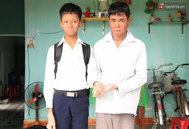 Cậu bé người rắn ở Quảng Nam: Hồi trước các bạn bỏ chạy vì sợ, nhưng giờ nhiều bạn thân với con lắm. - Ảnh 11.