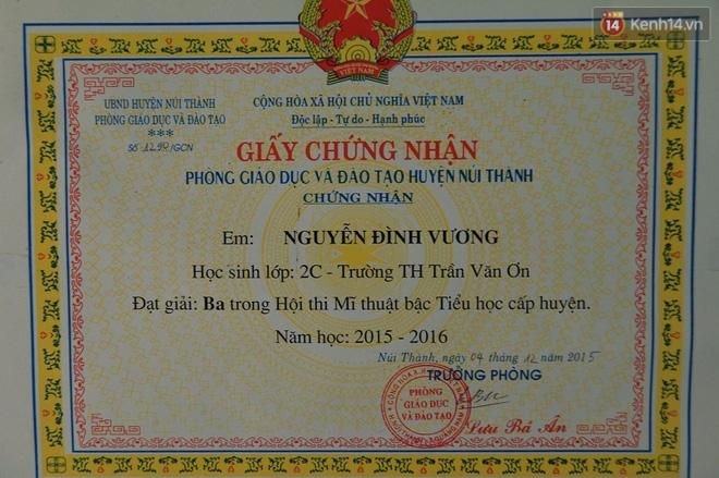 Cậu bé người rắn ở Quảng Nam: Hồi trước các bạn bỏ chạy vì sợ, nhưng giờ nhiều bạn thân với con lắm. - Ảnh 13.