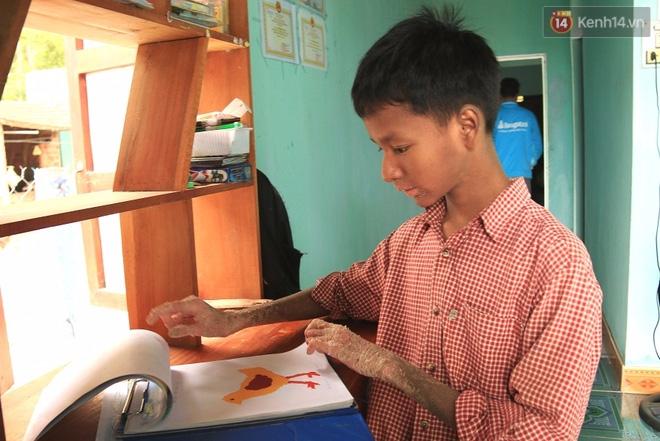 Cậu bé người rắn ở Quảng Nam: Hồi trước các bạn bỏ chạy vì sợ, nhưng giờ nhiều bạn thân với con lắm. - Ảnh 14.