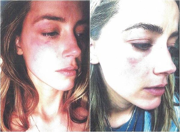amber heard bị bạo hành