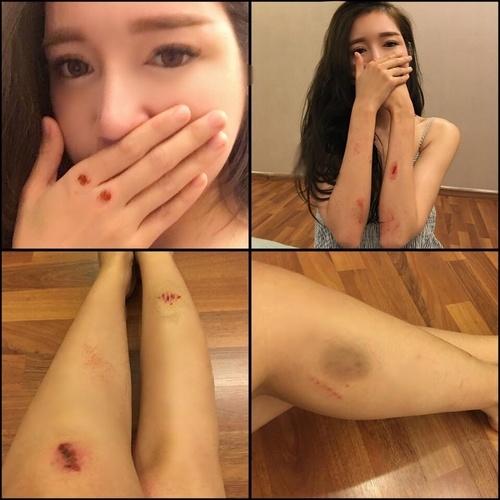 Hậu trường bầm dập, trầy xước khắp cơ thể của Elly Trần - 1