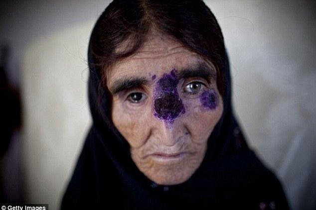 Căn bệnh ngoài da quái ác gieo rắc nỗi kinh hoàng lên toàn vùng Trung Đông - Ảnh 1.
