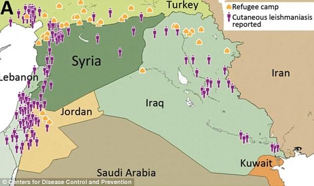 Căn bệnh ngoài da quái ác gieo rắc nỗi kinh hoàng lên toàn vùng Trung Đông - Ảnh 3.