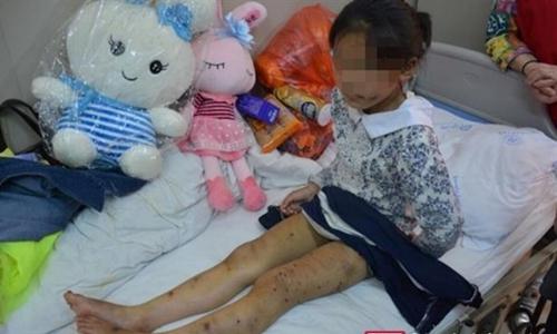 Mẹ nuôi dùng kéo đâm vào lưng, chân Quyên Quyên khiến cô bé bị nhiều vết thương. Ảnh: Sichuan News