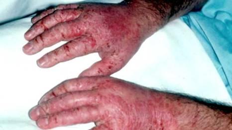 Da tay sạm, dày, ứa máu, sưng phồng do nhiễm độc chì. Ảnh: Nguồn: Viện Sốt rét - Ký sinh trùng - Côn trùng Trung ương.