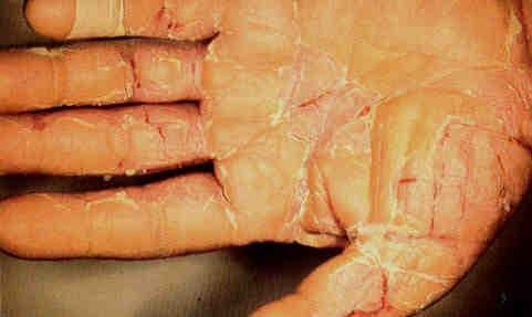Bàn tay nứt toác vì ngộ độc chì. Ảnh: Viện Sốt rét - Ký sinh trùng - Côn trùng Trung ương.