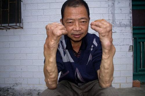 Một hình ảnh tay biến dạng do nhiễm độc chì ở người lớn.