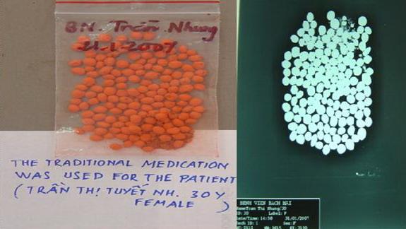 HÌnh ảnh thuốc nam không rõ nguồn gốc, phim X-quang cho thấy thuốc nam này nhiễm chì ra sao. Ảnh: Bệnh viện Bạch Mai