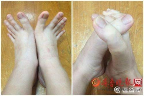 Nữ sinh bất ngờ nổi tiếng vì 'ngón chân dài... như ngón tay' - ảnh 2