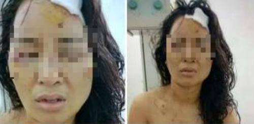 Lộ tin nhắn khiến cô giáo bị chồng cũ đánh bầm tím khắp cơ thể - Ảnh 2