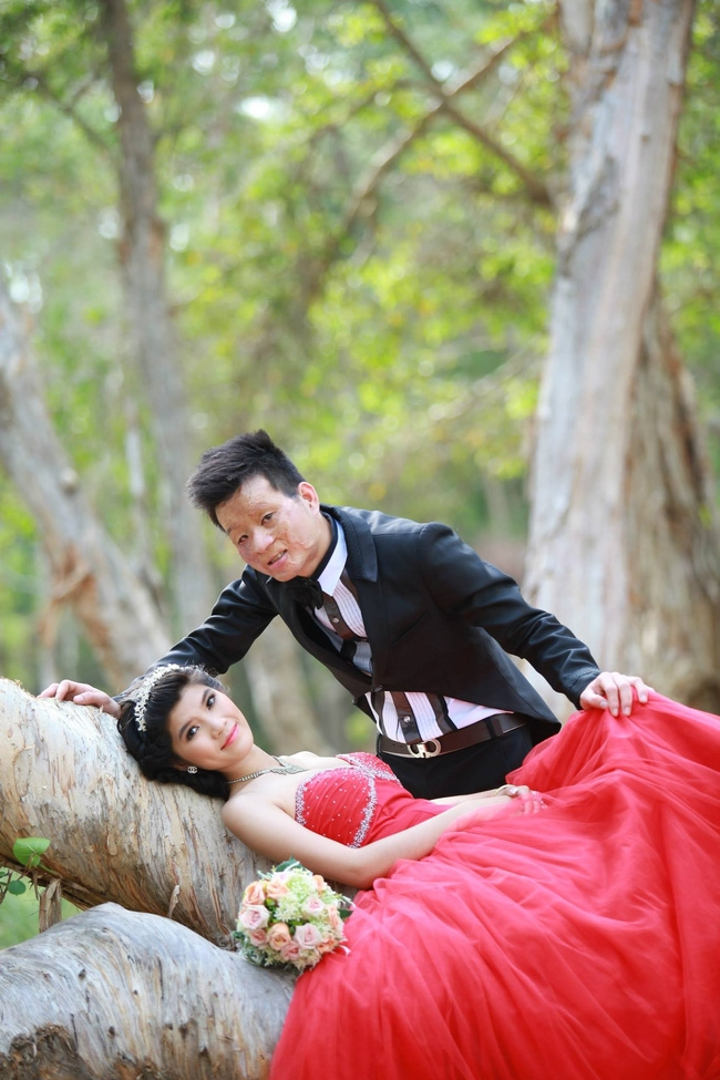 Cặp đôi chồng xấu - vợ xinh sau 2 năm kết hôn giờ ra sao? - Ảnh 1.