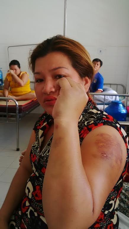 Chị Thùy Dương bị đánh bầm tay