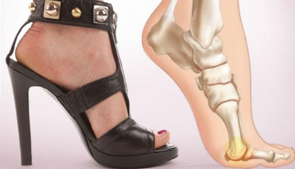 Thoải mái đi giày cao gót mà không sợ bị đau chân