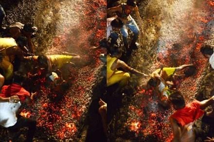 Cậu bé Kartik bị bỏng nặng sau khi bị cha làm rớt xuống than hồng