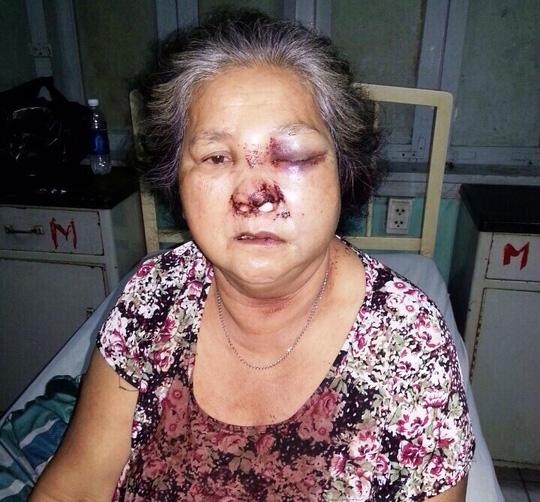 Bà Lê Thị Hoàng phải nhập viện vì bị đánh trọng thương Ảnh: SỸ HƯNG