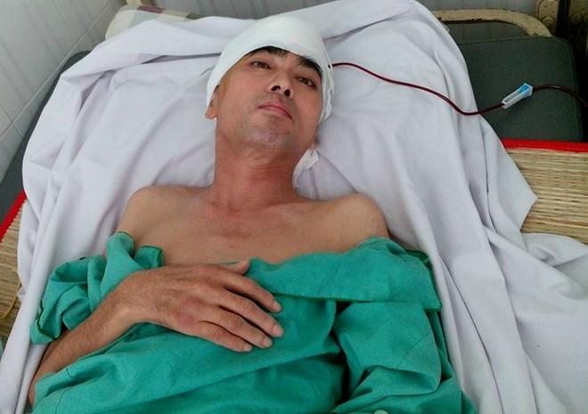 Dien vien Nguyen Hoang phau thuat ghep hop so thanh cong hinh anh 1