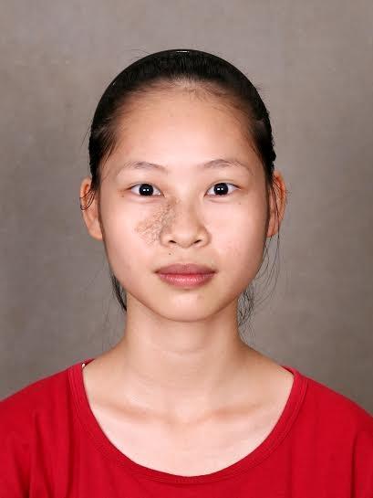 Xoá bỏ vết chàm trên mặt, nữ sinh này đã lột xác trở thành một con người hoàn toàn khác - Ảnh 2.