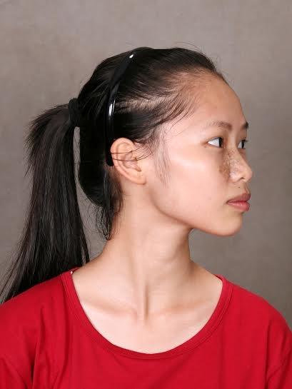 Xoá bỏ vết chàm trên mặt, nữ sinh này đã lột xác trở thành một con người hoàn toàn khác - Ảnh 3.