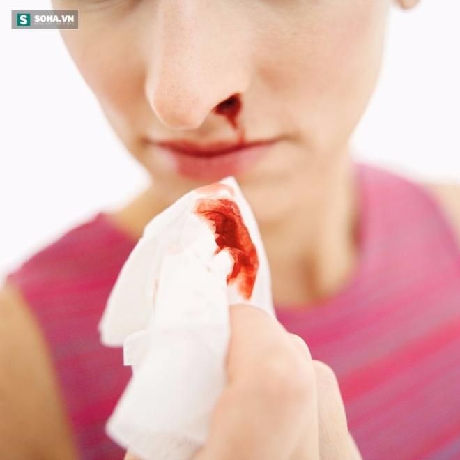 Sốc: Bé gái bị ung thư vòm họng vì hít khói thuốc thụ động - Ảnh 1.