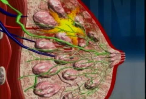 ung thư, ung thư vú, ung thư ở phụ nữ, ung thư có tính di truyền
