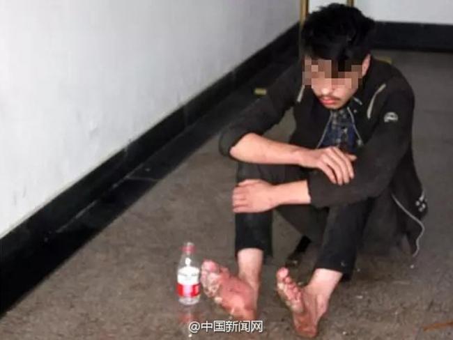 Game thủ bị thối rữa chân sau 6 ngày cắm rễ ở quán net - Ảnh 1.