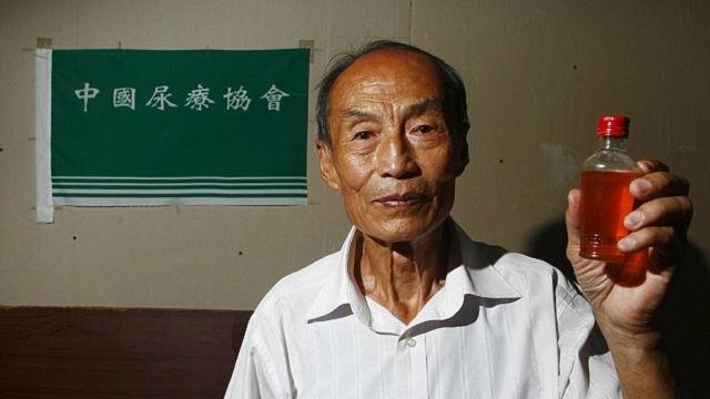 Người đàn ông uống nước tiểu 23 năm để chữa bệnh.