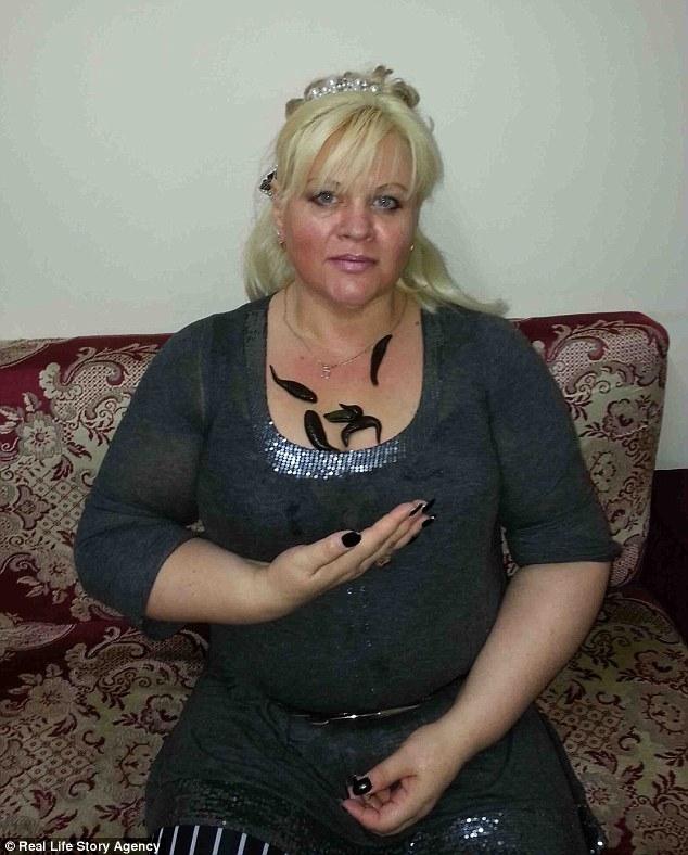 Người phụ nữ giảm được gần 60kg cân vì cho đỉa hút máu thoải mái - Ảnh 1.