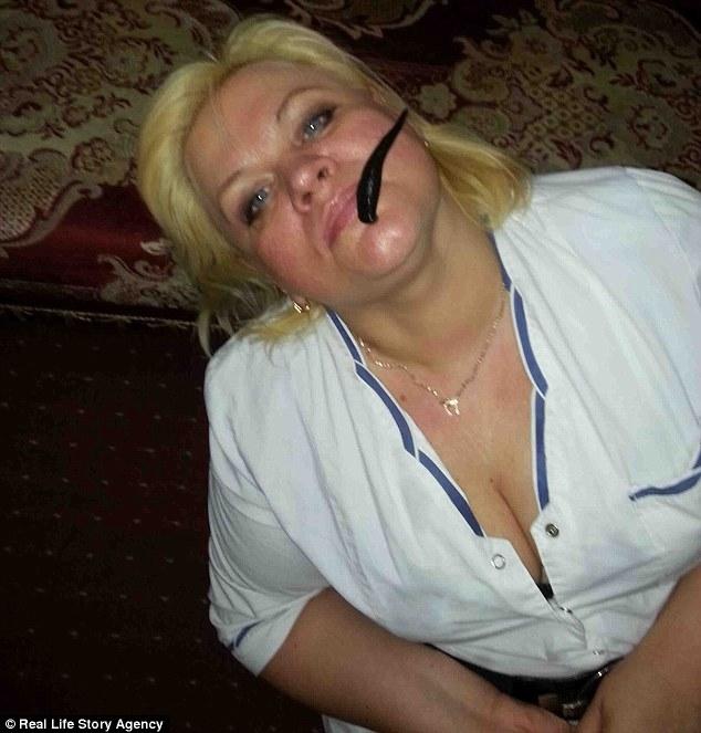 Người phụ nữ giảm được gần 60kg cân vì cho đỉa hút máu thoải mái - Ảnh 4.