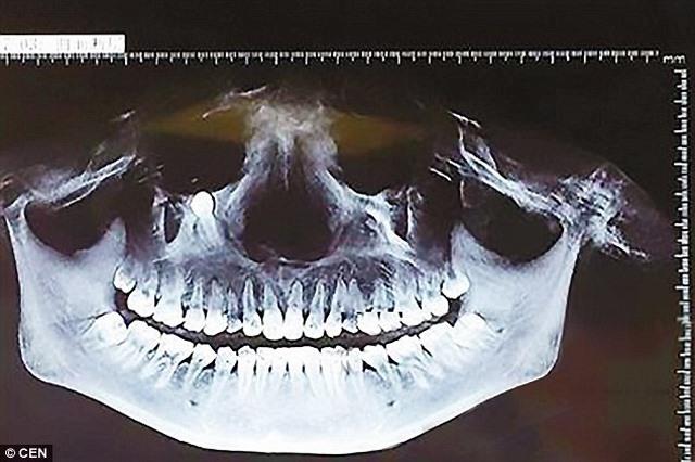 TQ: Ăn cơm thấy đau, đi khám thấy răng mọc gần mắt - 1