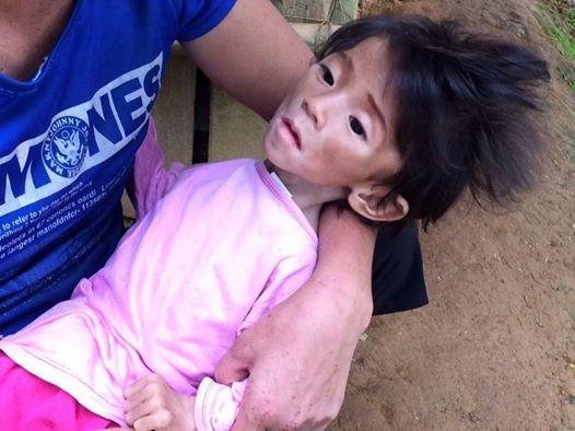 Bé gái 14 tháng tuổi nặng 3,5kg đang tập kích thích cơ và đã tăng lên 6,5kg