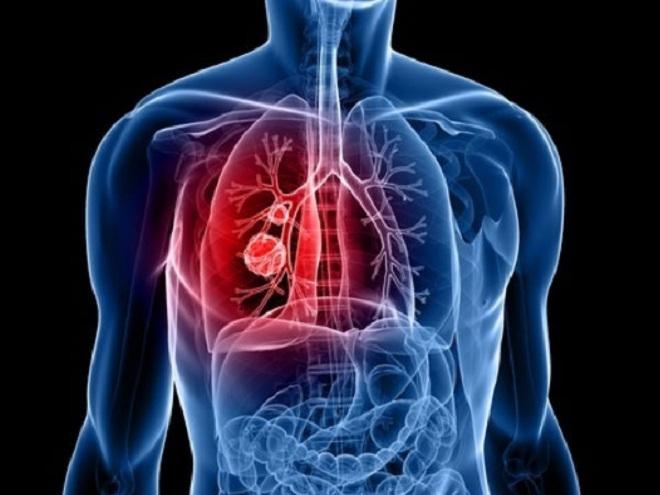 8 loại bệnh có thể gây chết người trong vòng 24h
