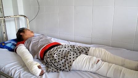 Tình trạng bỏng nặng khiến nạn nhân đối mặt với di chứng nghiêm trọng sau điều trị