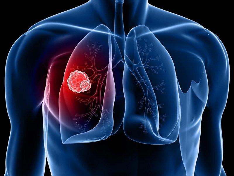 ung thư phổi, cách chữa ung thư phổi, dấu hiệu ung thư phổi, triệu chứng ung thư phổi, cách chữa ung thư phổi tốt nhất