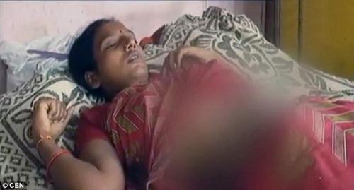 Con dâu bị mẹ chồng đổ axit lên bụng vì nghi mang bầu con gái - 2