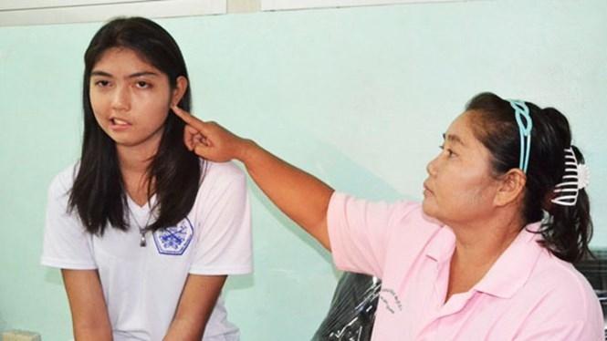 Cô bé 17 tuổi không thể khép miệng và nhắm mắt trái sau khi bị thầy đánh /// Ảnh chụp màn hình Bangkok Post