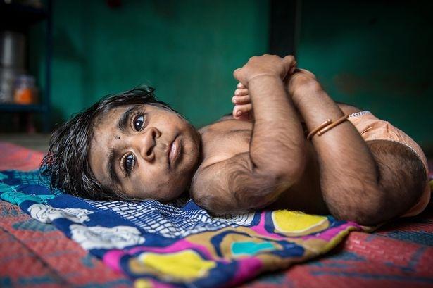 """Mẹ đau khổ khi sinh con trai """"ma sói"""" tỉ lệ gen hiếm 1/1 tỉ - 1"""