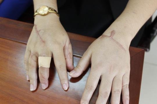 Bàn tay chị Đậm với vô số vết chém do Huy gây nên